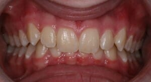 Example of an excessive overbite