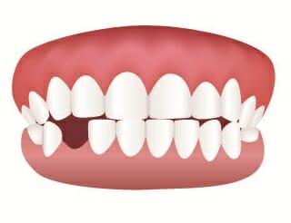 teeth missing
