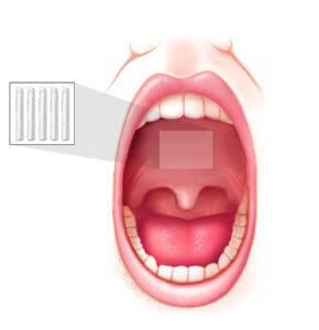 http://www.snoringmouthpieceguide.com/our-mouthpiece-recommendation/