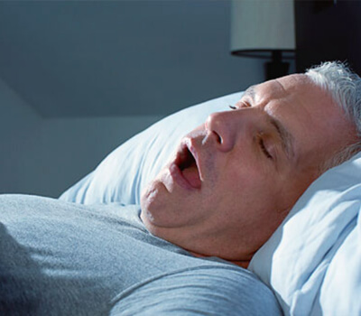3 Snoring Devices For Mouth Breathers