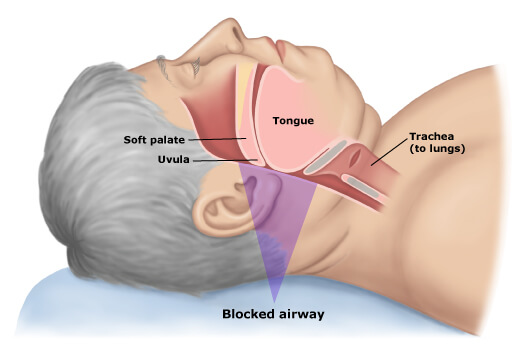 blocked airway