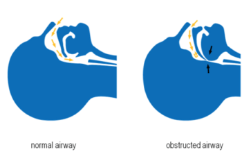 Comparison of clear airway and obstructed airway