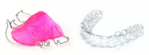Typical retainers. Note the metal framework of the one on the left and custom shape of the one on the right