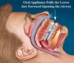 Illustration of how oral appliance pulls jaw forward to open airway